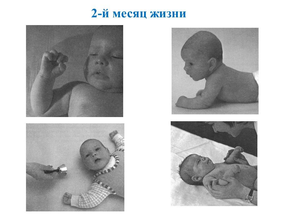 Фото детей 2-го месяца жизни